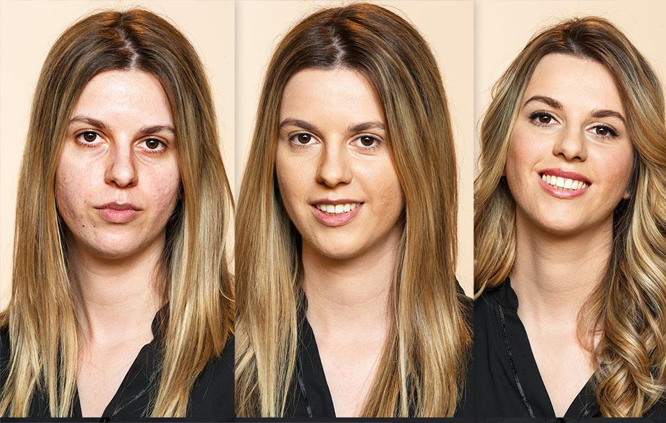 Anina transformacija Dermablend puderom