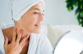 Kako menopauza utiče na Vašu kožu Gubitak čvrstine, suva koža
