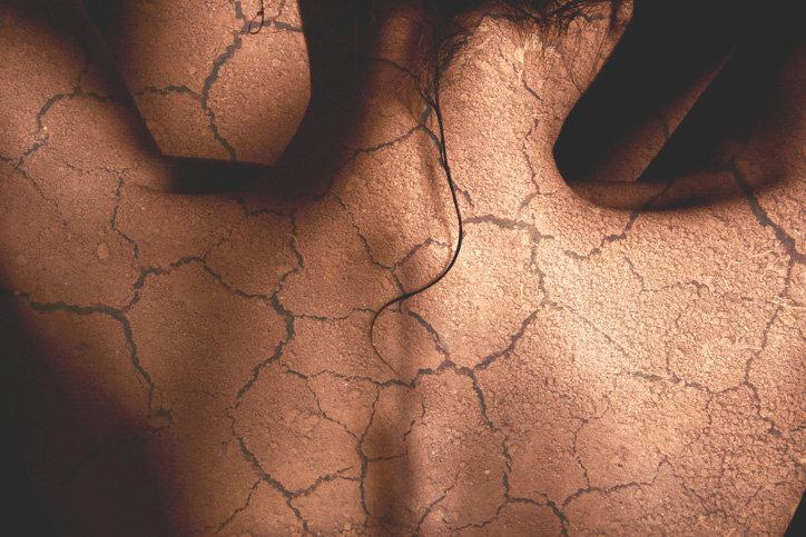 Suva koža
