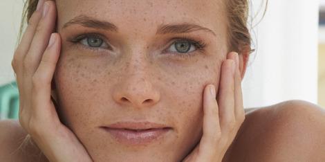 Šta je osetljiva koža i kako je hidrirati?